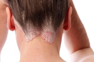 כאבים בעקבות פסוריאזיס
