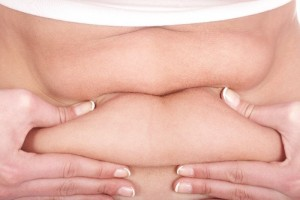 פסוריאזיס והשמנת יתר