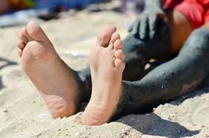 פסוריאזיס ברגליים